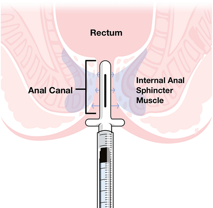 DoseRite Anal Application