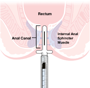 anal_fissure_anatomy_diagram